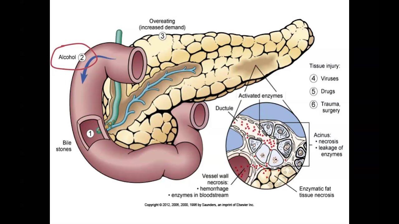 pancreatitis symptoms gallstones