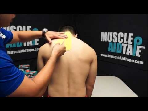 MuscleAidTape: Cervical Disc Pain