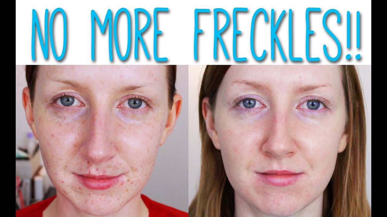 Laser For Pigmentation Removal Before And After Youtube