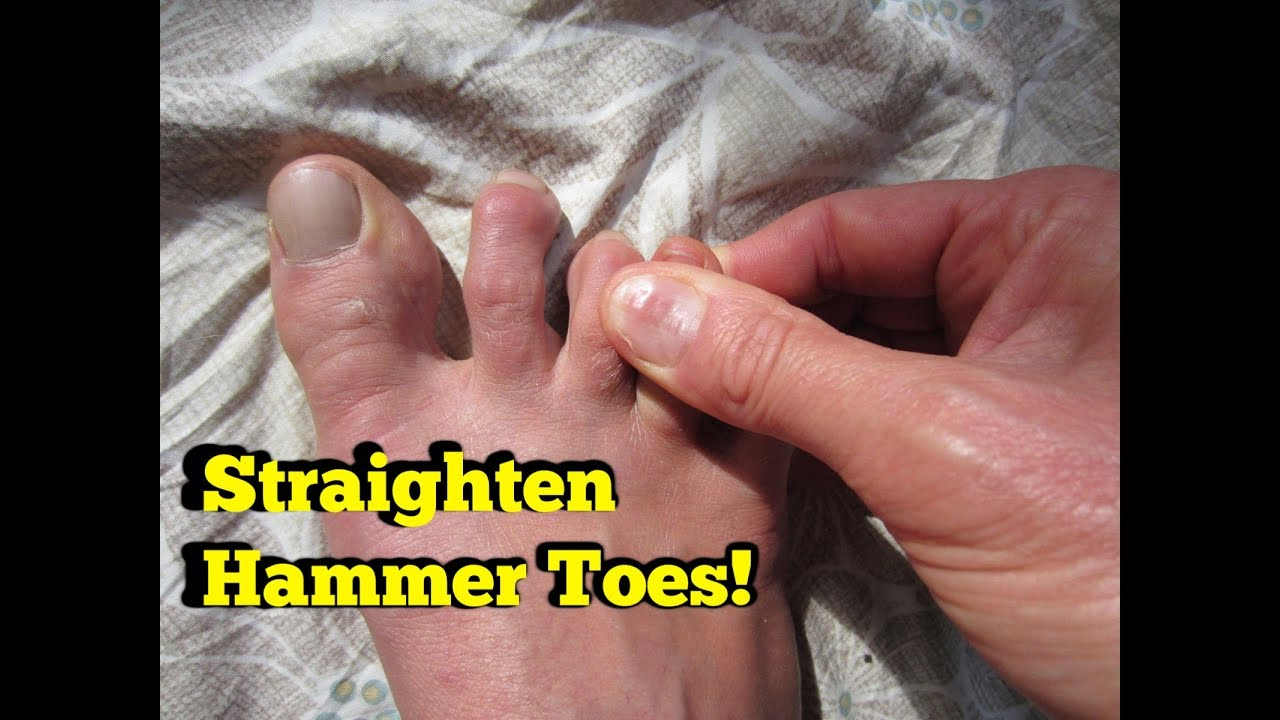 NATURAL CURE for Hammer Toes, Claw or Mallet Toes ...