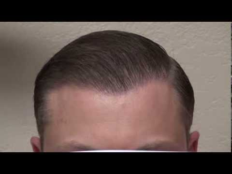 Men Hair Line Restoration Hair Transplant for Caucasian Men Hair Loss Dr. Diep www.mhtaclinic.com