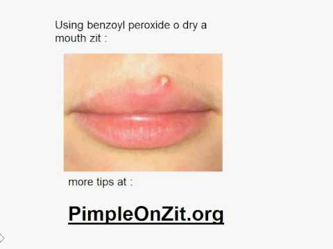 can u get cold sores on your chin? | Yahoo Answers