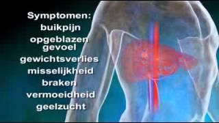 levercirrose kenmerken