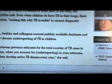 32,000 CHILDREN ARE INFECTED WITH DRUG RESISTANT TB
