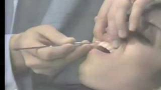 Prophylaxis Instrumentation Principles