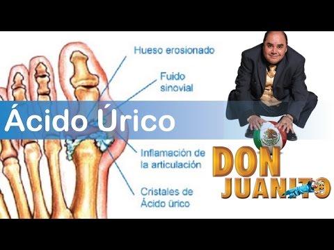 acido urico vinagre acido urico nivel maximo propiedades de la pina para el acido urico