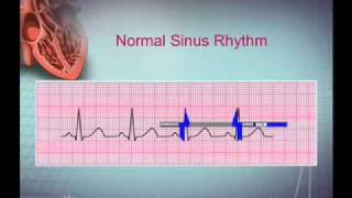 Intro EKG Interpretation Part 1