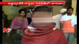 Man Cut off Womans Nose and Hair for Dowry in Uttar Pradesh