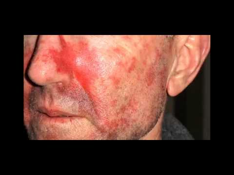 Stop Skin cancer - wear sunscreen
