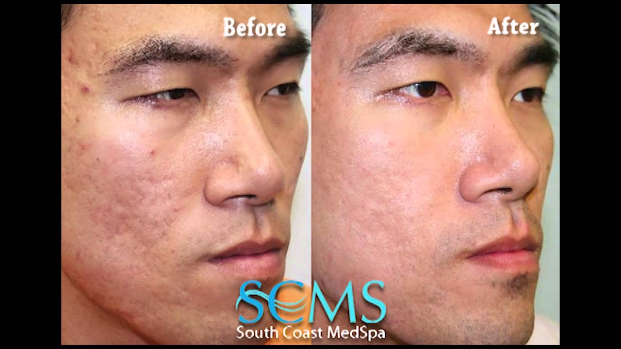 Before After Asian Male Newport Beach Laser Acne Scar