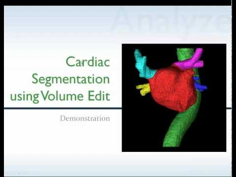 Cardiac Segmentation using Volume Edit in Analyze 10.0 - Webinar