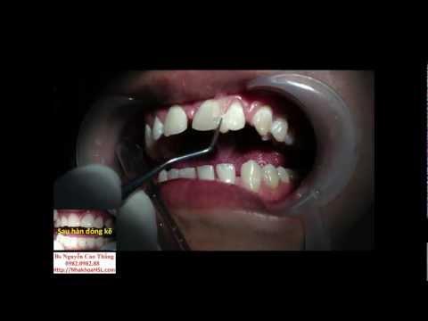 Hàn răng thẩm mỹ đóng kẽ răng thưa - Bác sĩ Nguyễn Cao Thắng Nha khoa HSL