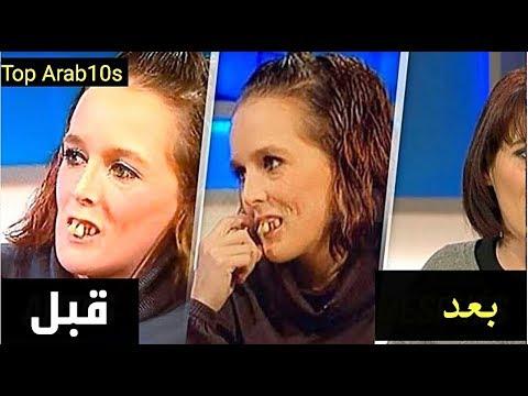 اسهتزؤوا بها لأن شكلها قبيح..شاهد كيف اصبحت بعد 5 سنوات جعلتهم يندمون..!!