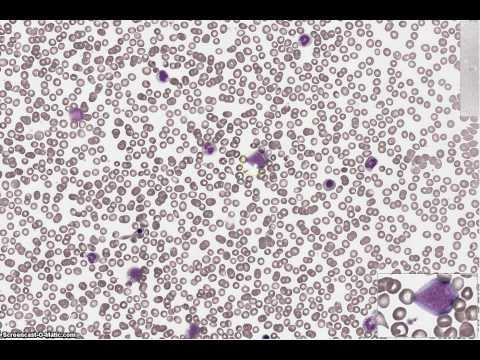 Granulocyte Maturation