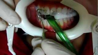 Diş Teli Nasıl Takılır? - Dr. Özgür Zileli