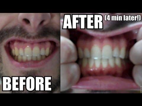 Whiten teeth with Turmeric