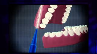 How To Use An Interdental Brush