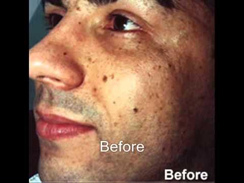 Acne, Pigmentation, Open Pore, Skin Resurfacing, Skin Whitening, Stretch Marks Treatment 9900275711