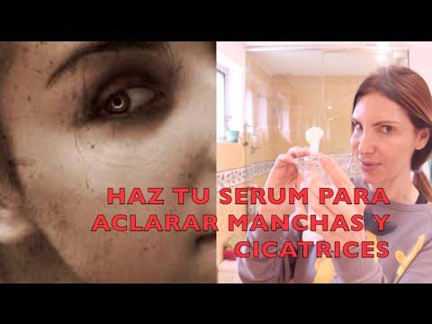¿Horribles Manchas en la PIel? Poderoso Serum Aclarante Casero / DIY Lightening Serum