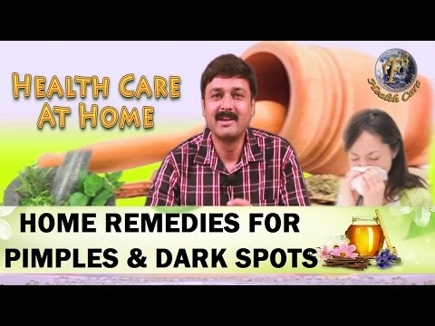 Home Remedies for Pimples, Acne and Dark spots.