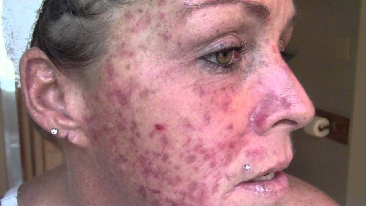 Skin Cancer My Vlog Journal Treatment W Efudex Vid 9