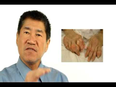 gout increases