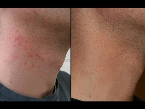 How To Cure Razor Burn Bumps On Neck Amp Legs Youtube