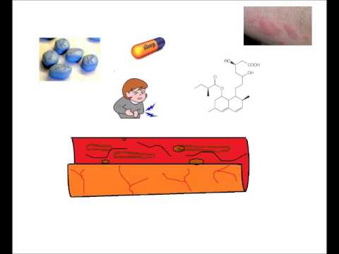 Watch before taking Statin drugs - Brief History