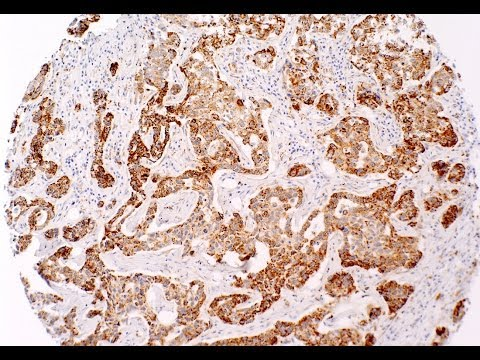 High cholesterol's link to breast cancer