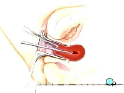 Malpractice Medical Dilation and Curettage D and C Surgery  3