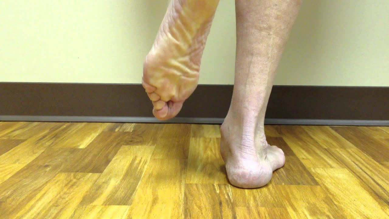 steroid injection in foot side effects