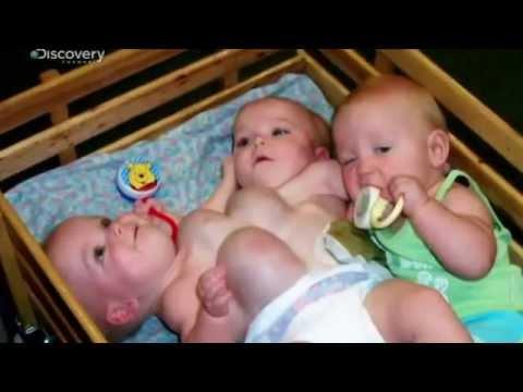 Rare Twins  - Gemelli siamesi multipli