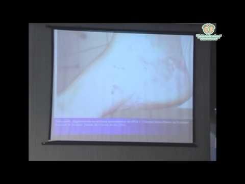 Palestra sobre Toxoplasmose, S�filis e HTLV