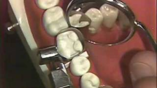 Packing of Class II Amalgam for Hygienists