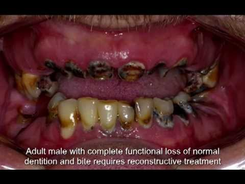 Mouth Surgeries 25