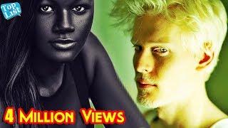 6 People with Unique Skin Color   Most Unique Skin colors    Freckles Facts