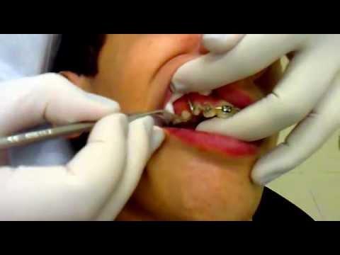 colocando aparelho no dente