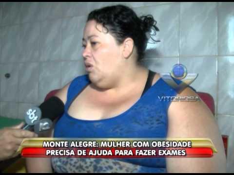 Monte Alegre: Mulher com obesidade precisa de ajuda para fazer exames