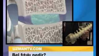Bel fıtığı nedir?