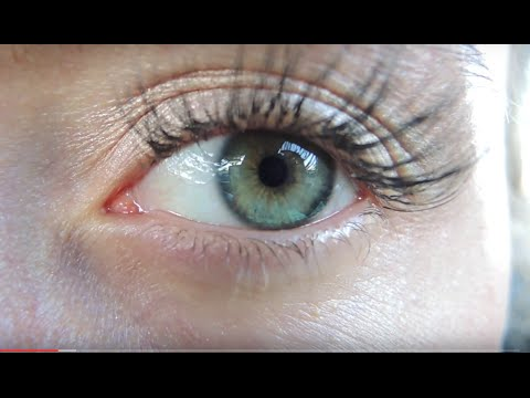 Iridology - What Is A Skin Ring & How To Get Rid Of It?