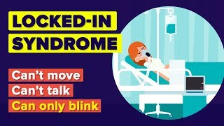 What Is Locked-in Syndrome? Worst Thing That Can Happen To You!