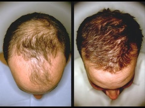 ginger garlic for hair growth by dimple d'souza