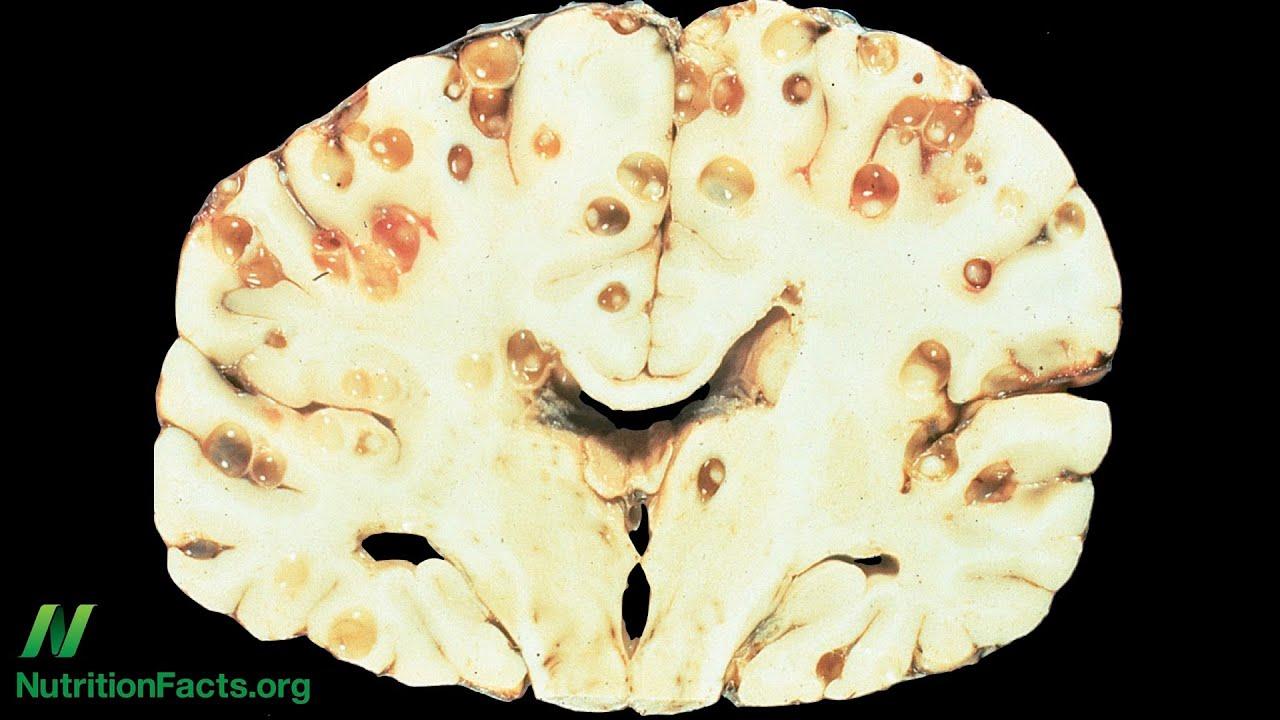 brain tapeworm - photo #1