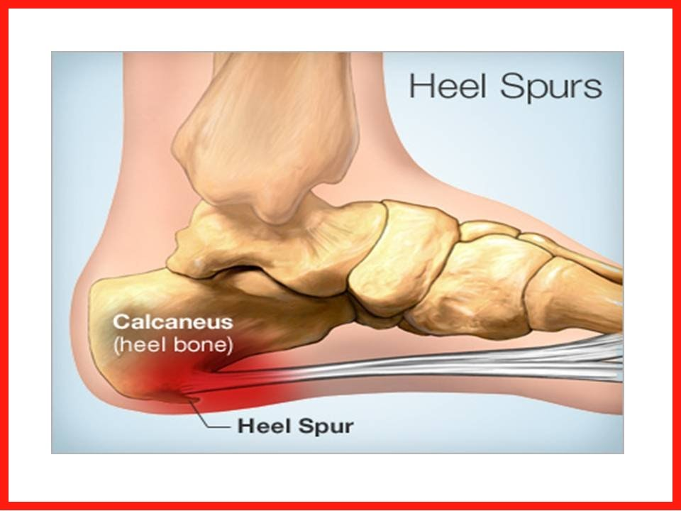 Pain In Heel Of Foot How To Get Rid Of Foot Pain Caused