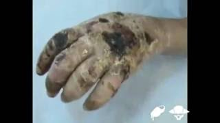 Krokodil Drug YouTube http://www.youtube.com/all_comments?v=hu0RUBNxfa8