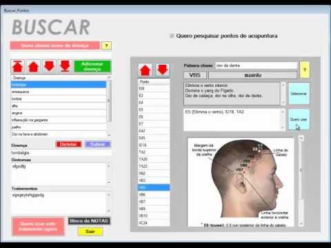 Koryosoft mtc software de acupuntura atlas em 3d combina o de pontos youtube - Software progettazione giardini 3d gratis ...