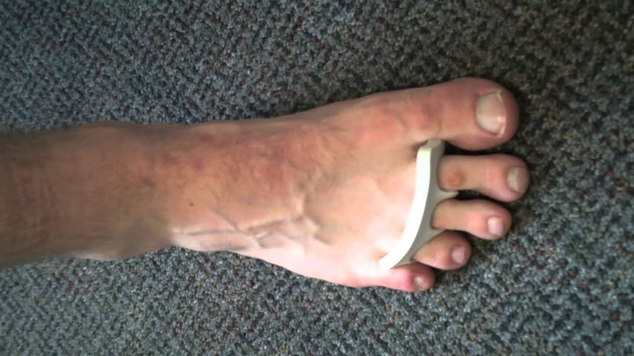 intrinsic foot exercises