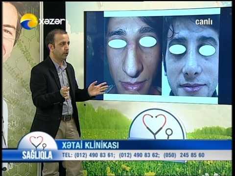 XETAİ ESTETİK KLİNİKA DR SAMİ SAMİN 07.01.2015 - 2