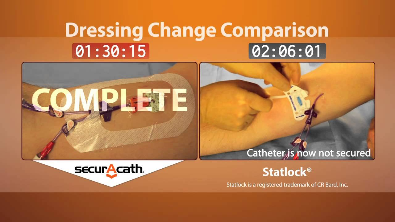 Securacath vs statlock dressing change youtube for Photo dressing change