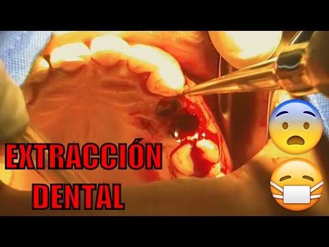 Extracción de restos radiculares